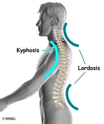 Hyperkyphosis And How It Affects Our Body -Guest Post